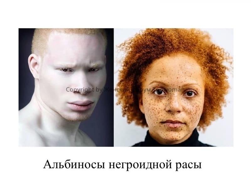 Негры альбиносы