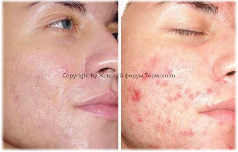 Алмазный пилинг лица: фото до и после
