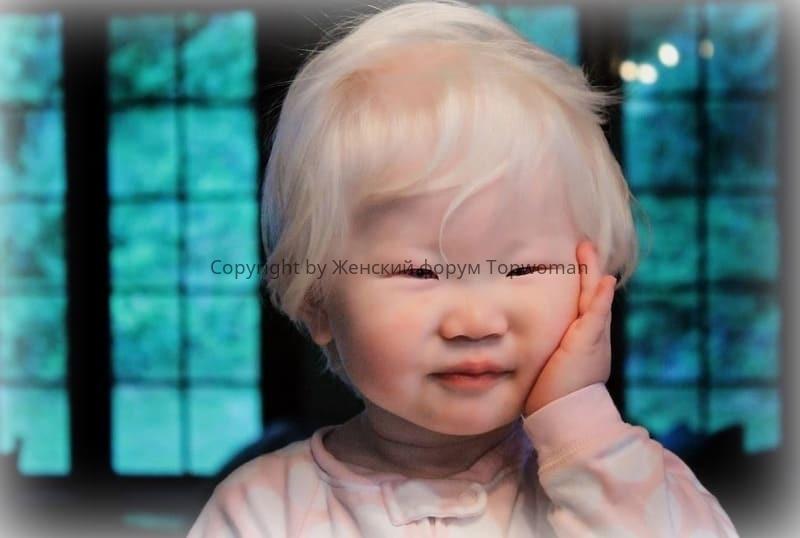 Азиаты альбиносы