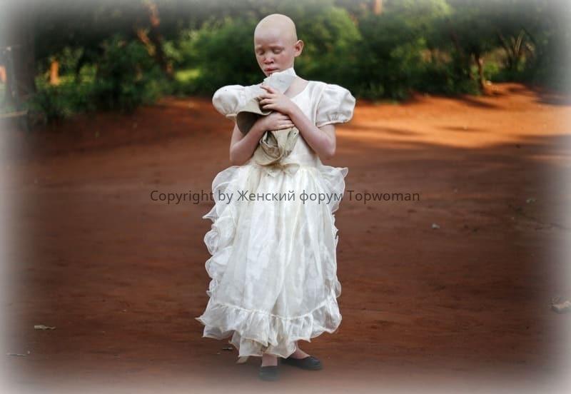 Альбинос «белая ворона»