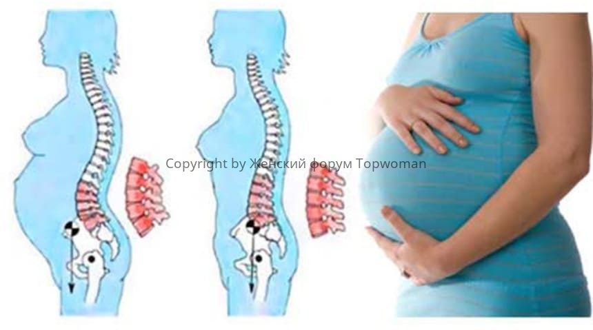 Болит поясница при беременности
