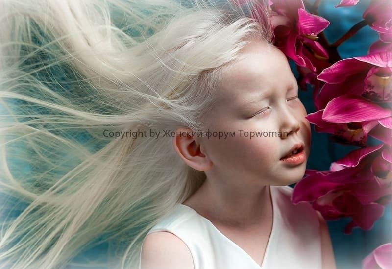 Модель альбиноска