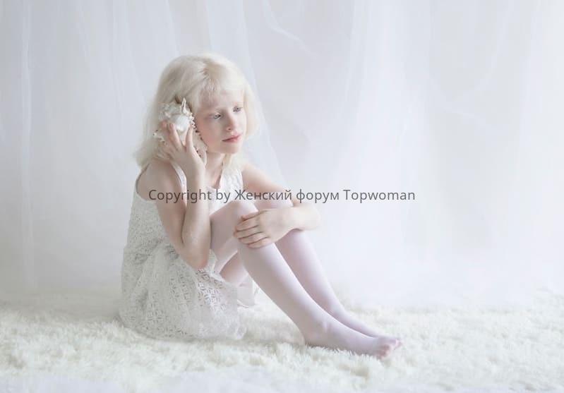 Красивая девочка альбиноска