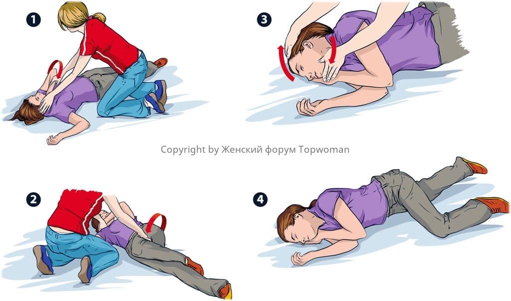 Первая помощь при приступе эпилепсии