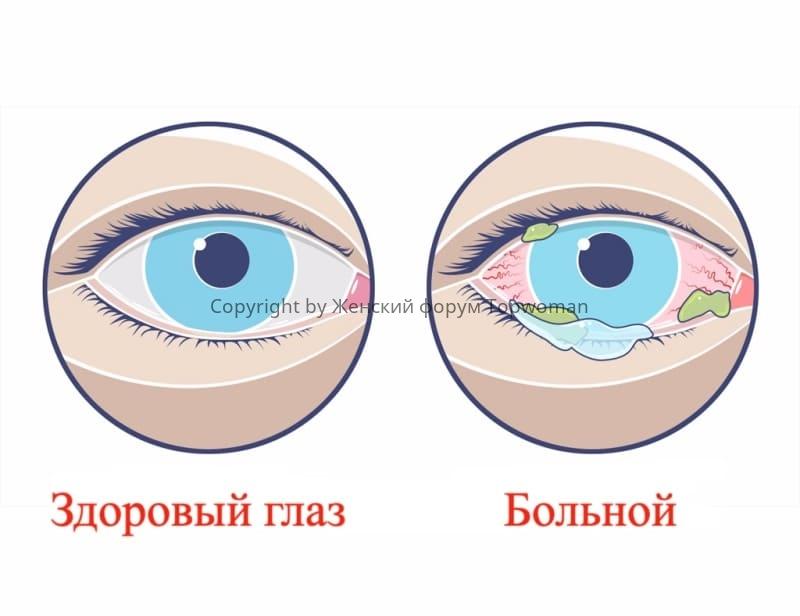 Конъюнктивит у детей (здоровый/больной глаз)