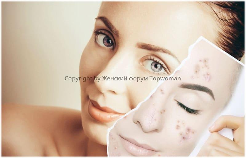 Алмазный пилинг лица: отзывы косметологов