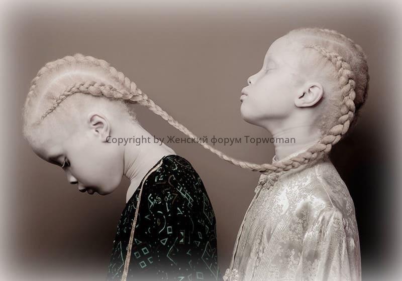 Почему рождаются альбиносы