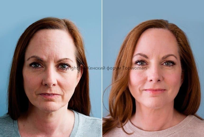 Ретиноевая мазь: фото до, и после
