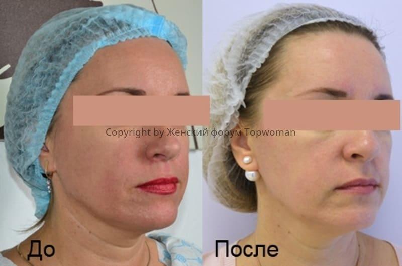 Фото до и после процедуры Смас-лифтинга